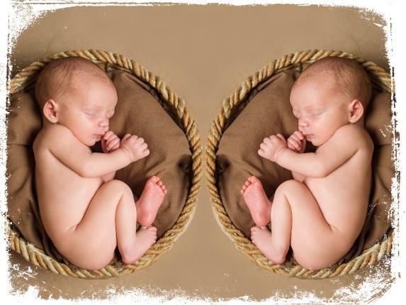 feto gemeos